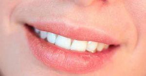 dudak kuruluğu nasıl geçer, dudak kuruluğuna ne iyi gelir