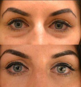 göz altı morlukların çözüm, göz altı morlukları nasıl geçer