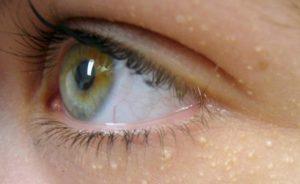 göz altı yağ bezeleri nasıl geçer