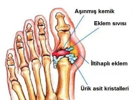Gut Hastalığı Sebepleri