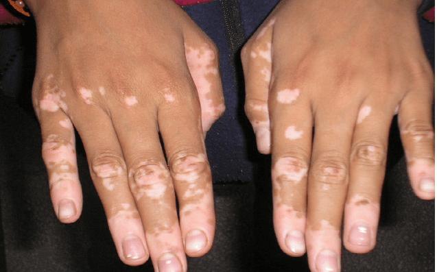 Vitiligo Nedir?
